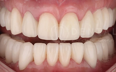 Phuket Dental Implants Cases