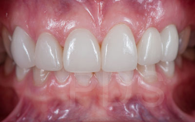 Phuket Dental Implants