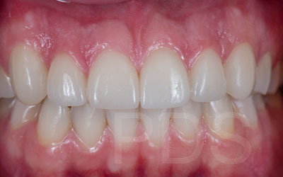 Phuket Dental Veneers Cases