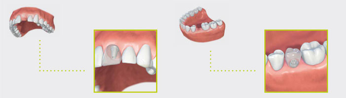 IMPLANT TREATMENTS